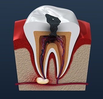Animation of damaged tooth